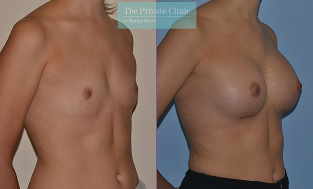 natural looking breast augmentation before after photo