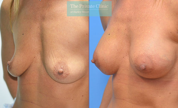 300cc high profile implants before after photo uk