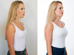 breast implants enlargement augmentation before after photos amy