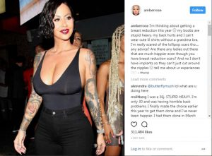 amber rose breast reduction the private clinic