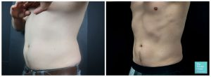 coolsculpting fat freezing crylipolysis male abdomen chest tummy before after results