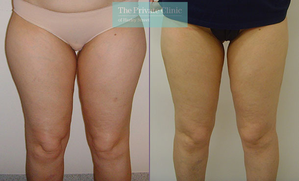 360 vaser liposuction inner outer thighs bums lipo before after results photos the private clinic front 009TPC