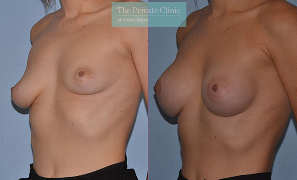 Asymmetric breast correction uk before after results angle Adrian Richards 051AR