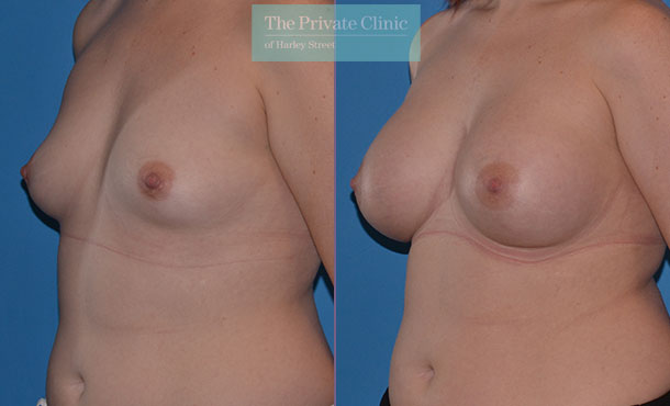 Asymmetrical breast correction surgery before after results angle Adrian Richards 050AR