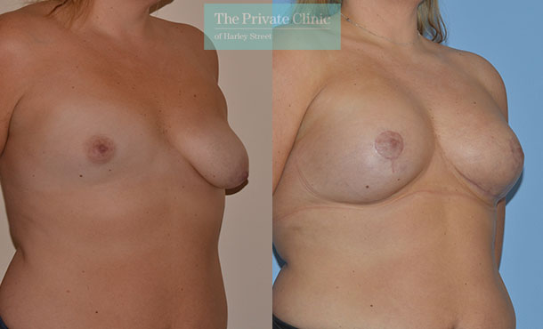 Asymmetry breast correction before after photo results angle Adrian Richards 053AR