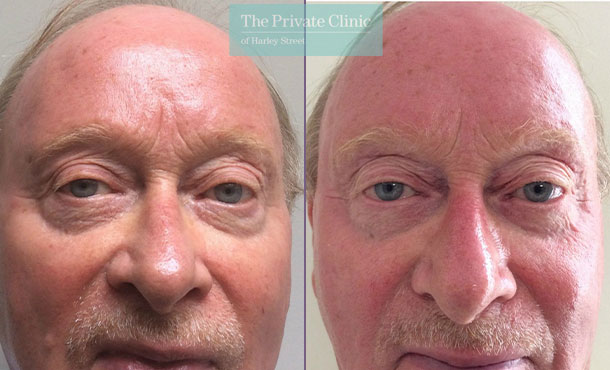 Blepharoplasty male before after photo results front davood fallahdar 017DF