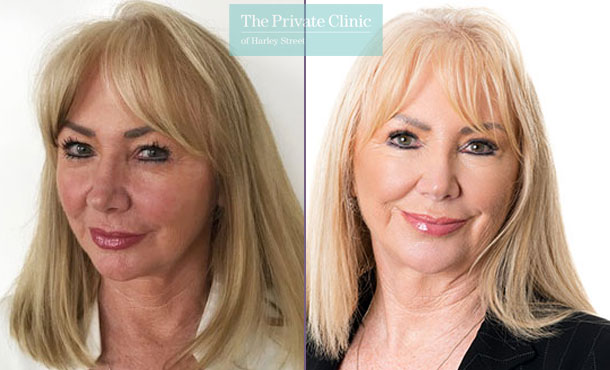 Blepharoplasty surgery female before after results front davood fallahdar 018DF