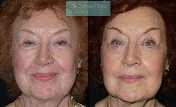 Blepharoplasty upper lower eyelid reduction before after photo results front miles berry 012MB