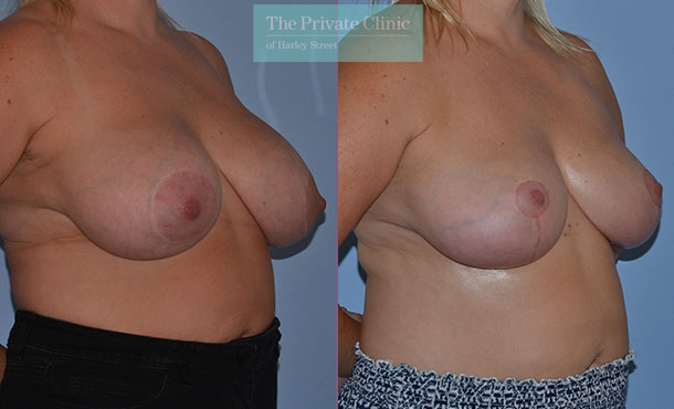 Breast auto augmentation before after results angle mr adrian richards 029AR