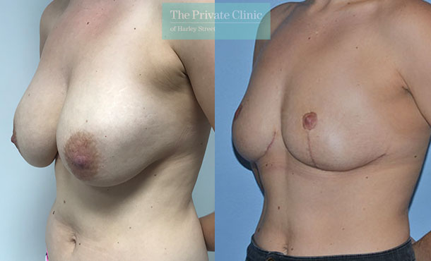 Breast auto augmentation before after results angle mr adrian richards 030AR