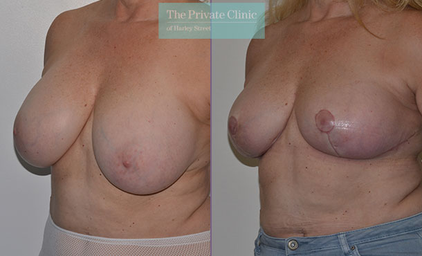 Breast auto augmentation before after results angle mr adrian richards 031AR