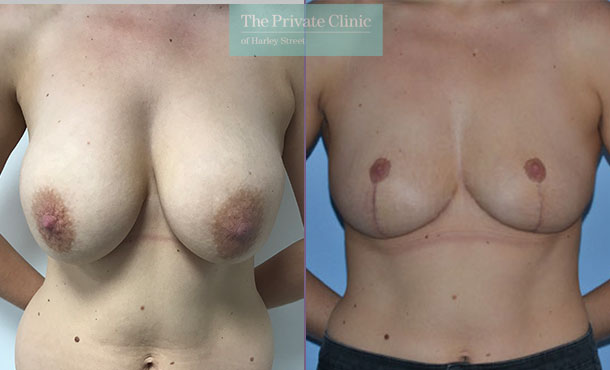 Breast auto augmentation before after results front mr adrian richards 030AR
