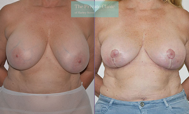 Breast auto augmentation before after results front mr adrian richards 031AR
