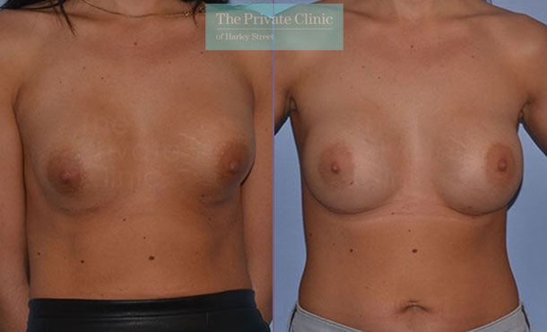 Breast implant removal replace exchange before after photo results front 048AR