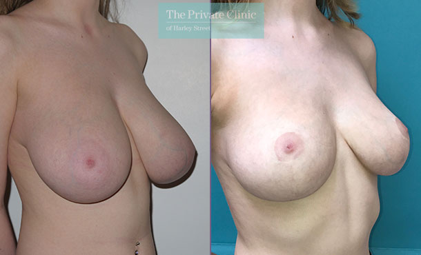 Breast reduction mammoplasty Before after results Angle miles berry 010MB