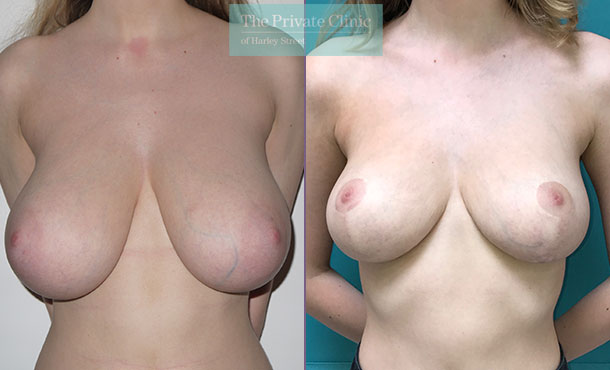 Breast reduction mammoplasty Before after results Front miles berry 010MB