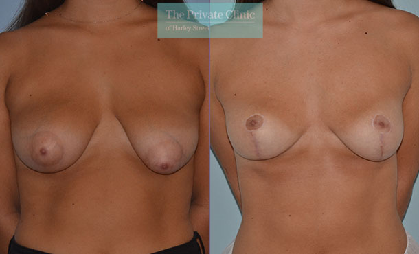Mastopexy Tuberous breast uplift before after results front mr adrian richards 041AR