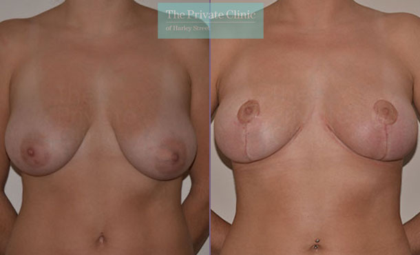 Mastopexy breast uplift before after results front mr adrian richards 055AR