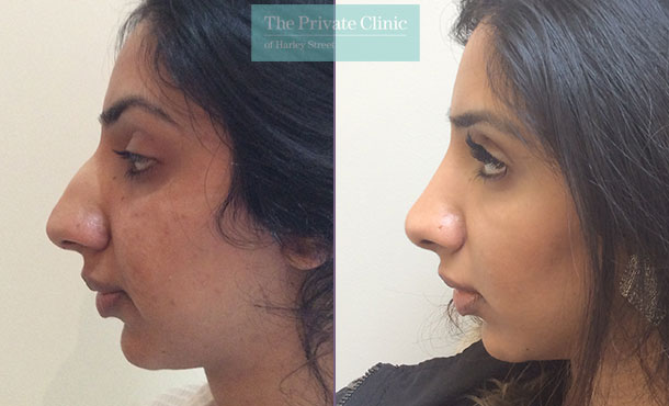 asian nose reshaping surgery rhinoplasty before after photos results london mr davood fallahdar 011DF