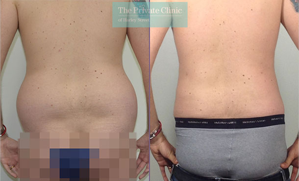back fat male liposuction surgical lipo lipoplasty before after results photos mr roberto uccellini 023RU