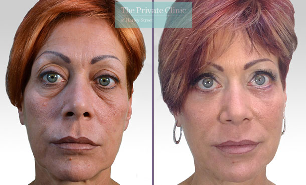 blepharoplasty eyelid reduction surgery mr roberto uccellini before after results photos 009RU