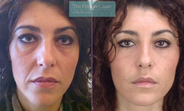 blepharoplasty eyelid reshaping surgery mr roberto uccellini before after results photos 008RU