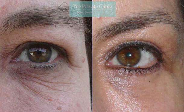 blepharoplasty lower eyelid surgery mr roberto uccellini before after results photos 010RU