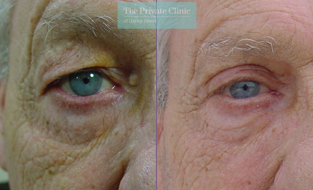 blepharoplasty upper lower eyelid reshaping surgery mr roberto uccellini before after results photos 011RU