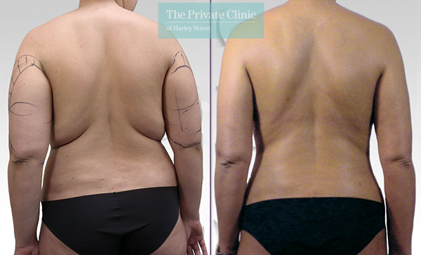 bra bulge back fat liposuction surgery lipo lipoplasty before after photos results mr roberto uccellini 018RU