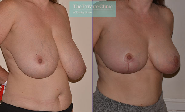 breast asymmetry correction before after results angle Adrian Richards 052AR