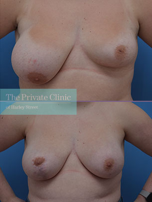 breast asymmetry correction surgery before after results photos mr adel fattah 007AF