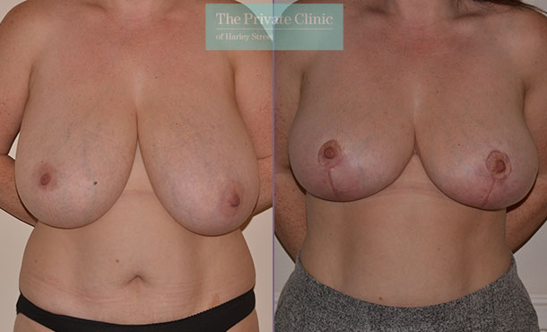 breast asymmetry surgery before after photo front Adrian Richards 052AR