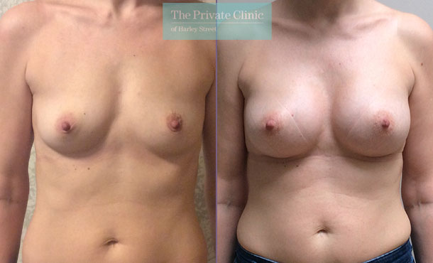 breast augmentation enlargement boob job near me before after results mr davood fallahdar front 008DF