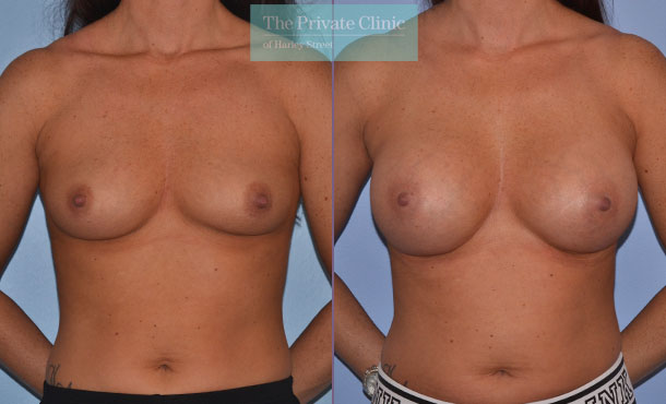 breast augmentation enlargement boob job surgery before after results mr adrian richards front 006AR