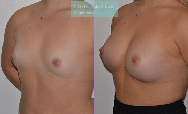 breast augmentation enlargement clinics uk before after results mr adrian richards angle 014AR