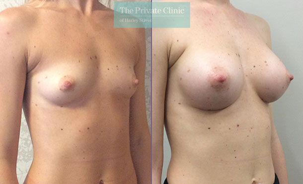 breast augmentation enlargement cosmetic surgery before after results mr davood fallahdar angle 002DF