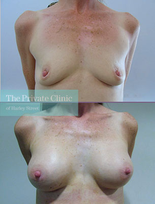 breast augmentation enlargement implants manchester before after results mr olumuyiwa olubowale front 001OO