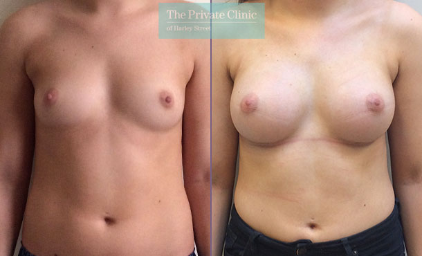 breast augmentation enlargement near me clinic before after results mr davood fallahdar front 007DF