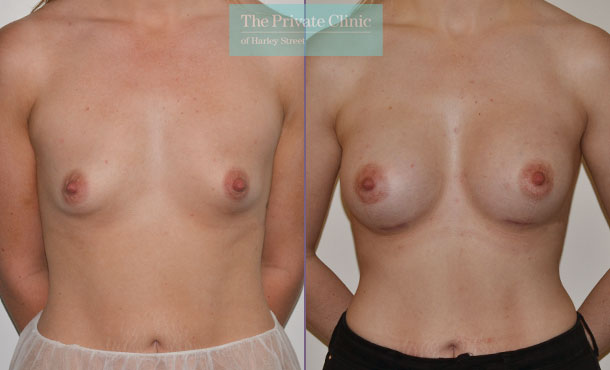 breast augmentation enlargement surgery before after photo results mr adrian richards front 008AR