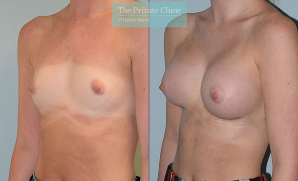 breast augmentation enlargement surgery before after photos results mr philip lim angle 001PL