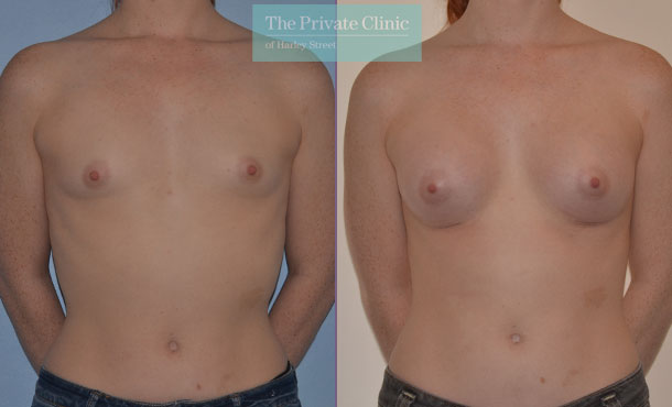 breast augmentation enlargement surgery london before after results mr adrian richards front 005AR