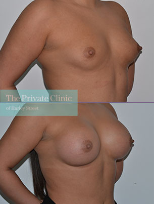 breast augmentation enlargement surgery near me before after results mr adrian richards angle 009AR