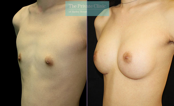 breast augmentation enlargement surgery uk before after results mr dario rochira angle 001DR