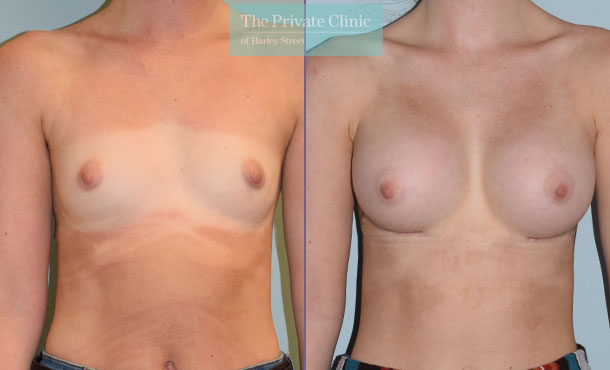 breast augmentation implants boobjob before after results mr philip lim front 001PL