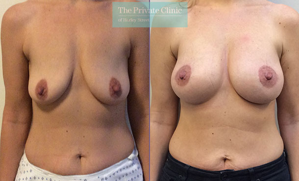 breast augmentation implants nearme london before after results mr davood fallahdar front 004DF