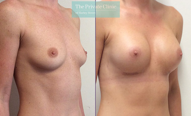 breast augmentation implants uk surgery before after results mr davood fallahdar angle 006DF