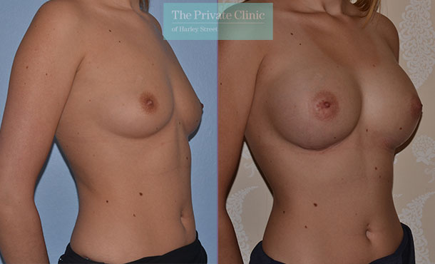 breast augmentation london enlargement implants surgery before after photo mr adrian richards angle 002AR