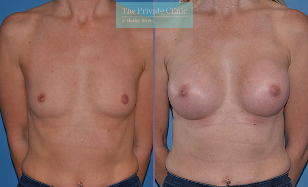 breast augmentation surgery implants before after photo results mr adrian richards front 010AR