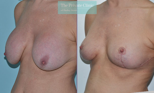 breast auto augmentation implant breast lift before after results photos mr adrian richards 028AR