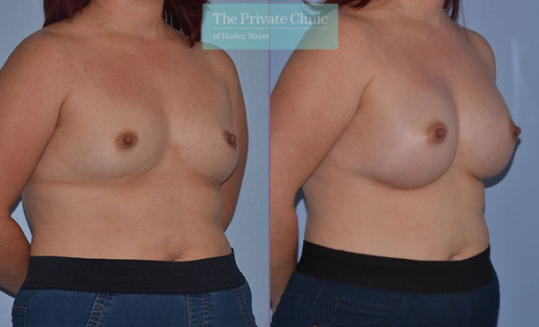 breast enlargement augmentation before after results mr adrian richards angle 004AR